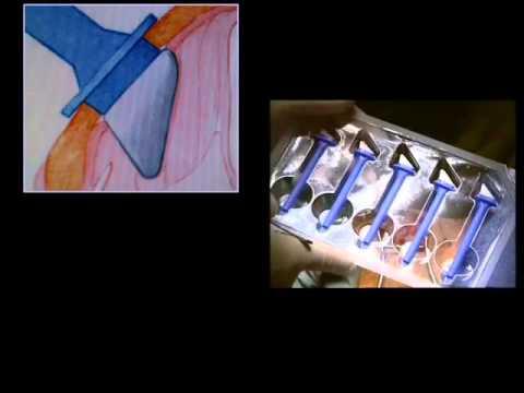 paralysie des cordes vocales médialisation laryngée, paralysie de corde vocale, implant d