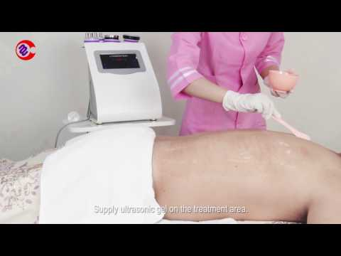 54D1 5IN1 Ultrasonic Cavitation Vacuum Rf Body Slimming Skin Lifting