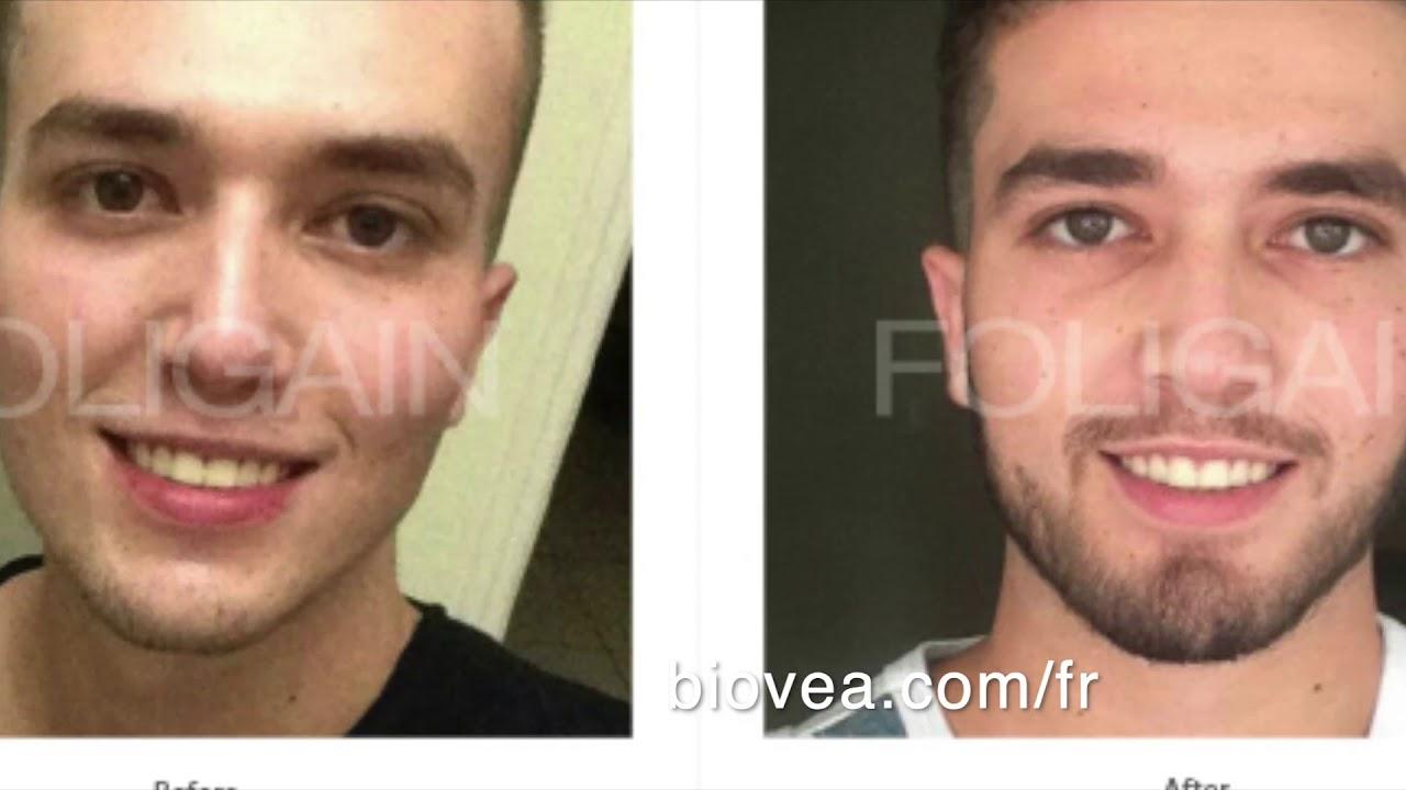 Le MINOXIDIL pour faire pousser la barbe? www.biovea.com/fr