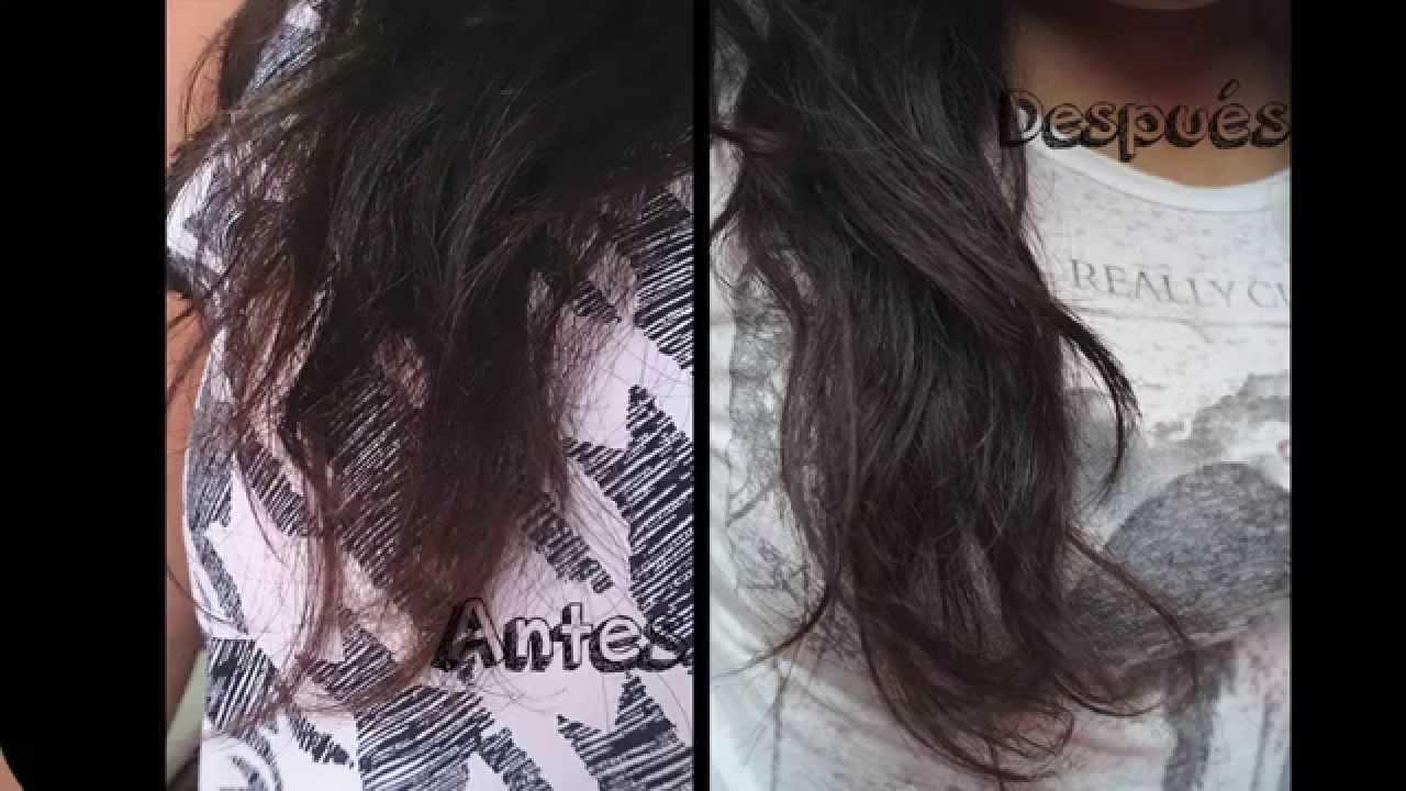 Caen los cabellos en la nuca la mancha