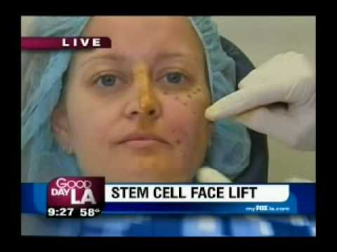 Stem Cell Face Lift On Good Day La Dr Nathan Newman Md