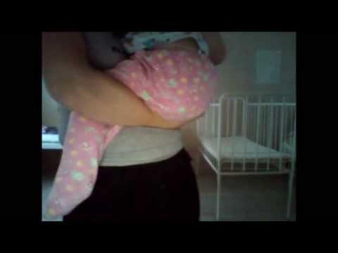 Стеноз гортани у детей - лечение, причины и симптомы