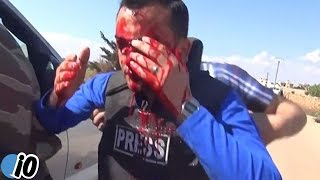 Reporter Hit By Shrapnel Live On Camera