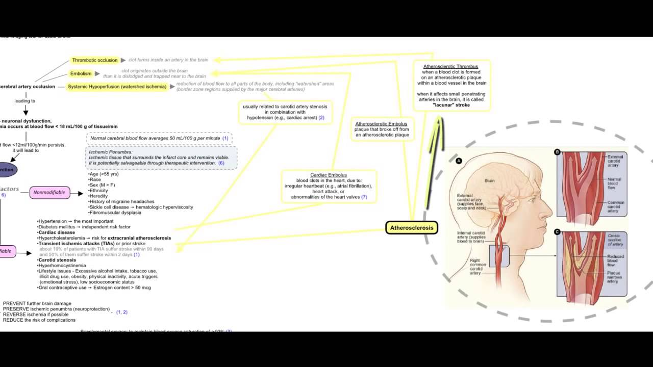 ischemic stroke concept map - Evolve Concept Map Creator