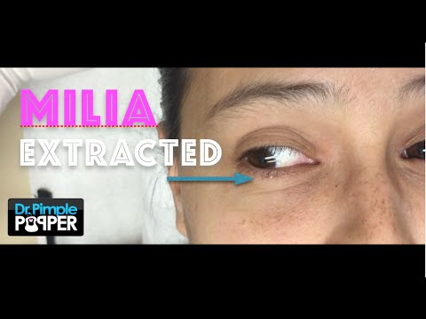 Dr Sandra Lee Presents 3 Patients With Milia