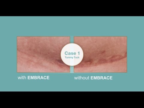 Embrace Silicone Tape Vs Traditional Scar Treatments Youtube - Siliconen Tape