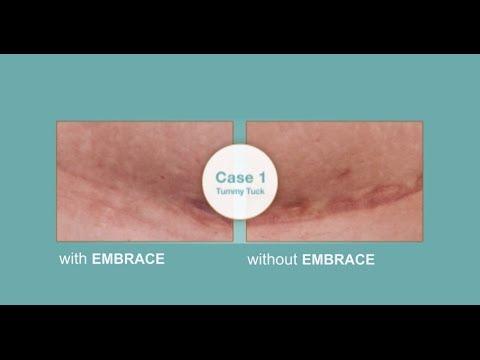 embrace scar therapy. embrace scar therapy m