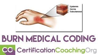 Burn Medical Coding and the Rule of Nines