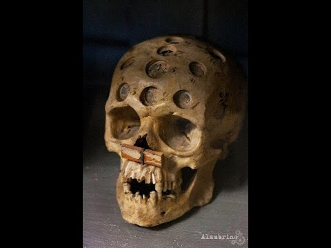 Like a Hole in the Head: A History of Trepanning
