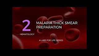 Malaria Thick Smear Preparation