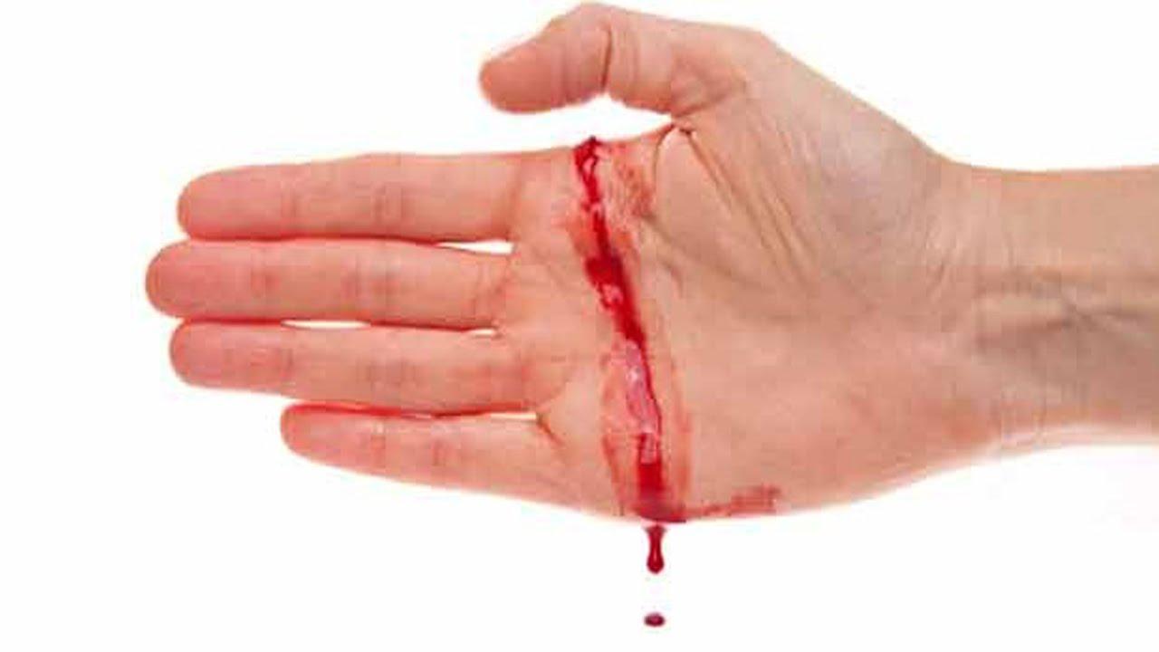 Картинки по запросу Hemophilia