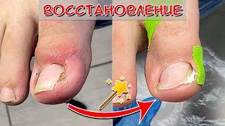 Вросший ноготь на большом пальце ноги (Часть 2) / Коррекционная система для ногтей