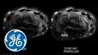 Intérêt des innovations IRM dans les pathologies ostéo–articulaire par Docteur Henri Guérini