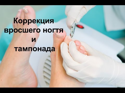 Коррекция вросшего ногтя и тампонада / Correction of ingrown nail and tamponada