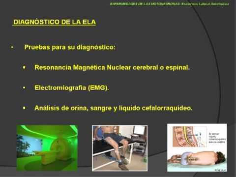 Neurorgs.net - Enfermedad de la motoneurona superior e inferior