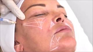 Dr Laurent Dumas - Injection de Radiesse dans les pommettes pour le rajeunissement du visage