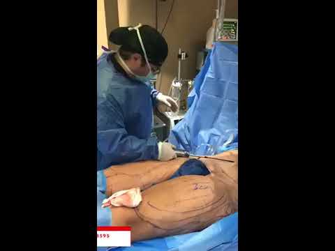 🥼dr-jeneby-live-from-the-or:-liposuction-+-bbl-🍑-|-plastic-surgery-in-san-antonio-by-dr-jeneby