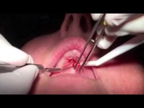 Removal of Soft Tissue Mass on the Palate - YouTube
