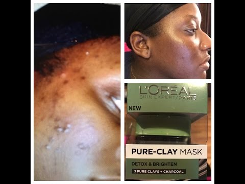 How I cleared my skin using L'Oreal Pure-Clay Mask | My Review, Pictures, and Demo!