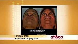 Atlanta Rhinoplasty Speciality Center Thumbnail