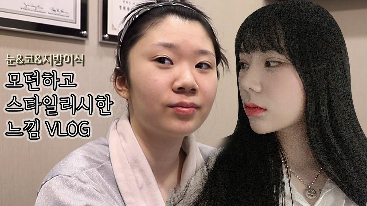 모던하고 스타일리시한 느낌의 눈 코성형, 지방이식 찐성형 Vlog 콤플렉스는 보완하고 미모는 up시키고,자연스럽게 예뻐진 모습으로 한달차 쿠키영상💖눈 재수술/코 성형/지방이식[쀼]