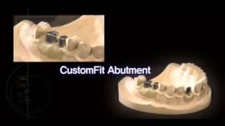 Корейские импланты зубов премиум класса компании OSSTEM Implant(Мы решили остановиться на описании производства корейских зубных имплантов премиум-класса от компании..., 2016-05-26T11:43:59.000Z)