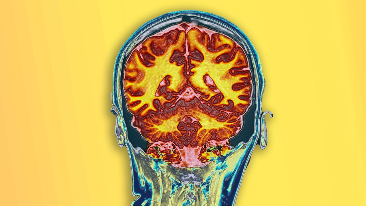A Student Drank 2 Bottles Over The Counter Cough Medicine. This Is What Happened To Her Brain.