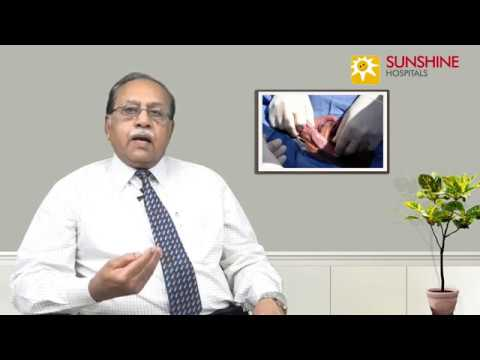 Watch Dr. C. S. Indra Mohan, Consultant General Surgeon, talk about Types of hernia