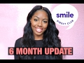 Smile Direct Club  6 MONTH UPDATE and a SUPRISE