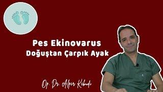 PES EKİNOVARUS (DOĞUŞTAN ÇARPIK AYAK) - Op. Dr. Alper Kebudi