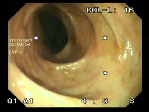 colonoscopic  multiple colonic ulcer(Ulcerative Colitis)