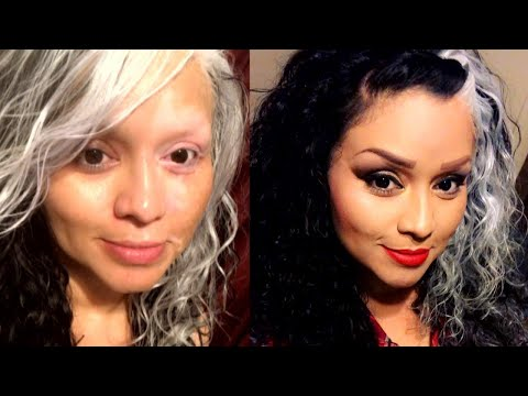 Womans Skin Condition Makes Her Look Like Cruella de Vil