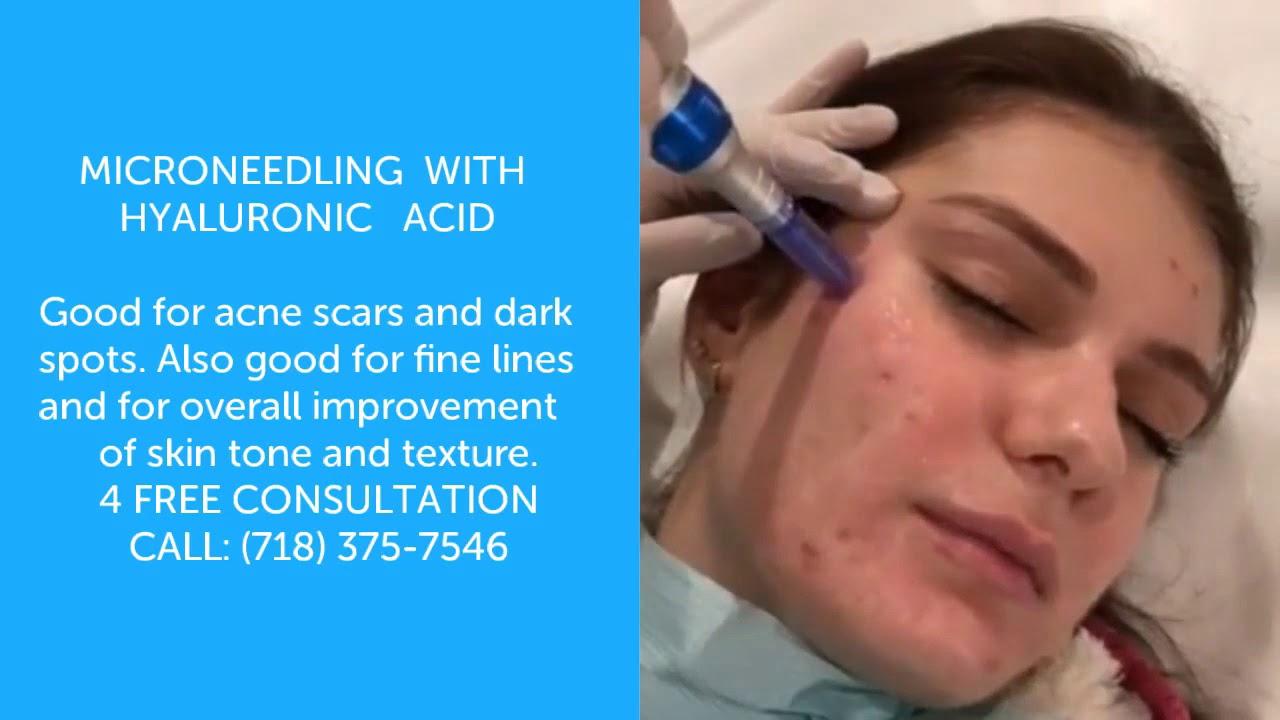 Microneedling with Hyaluronic Acid