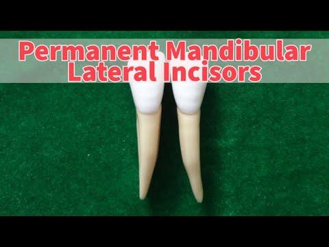 Mandibular Lateral Incisor