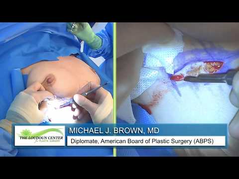 Breast Augmentation - Silicone: Live Streaming Plastic Surgery: Dr Michael J. Brown