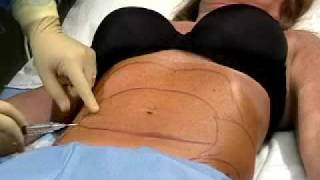 Dr.Solomon performs Liposuction