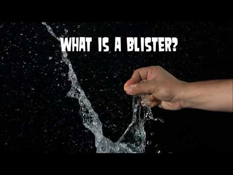 Pop Blisters Or Not?  What is a Blister?