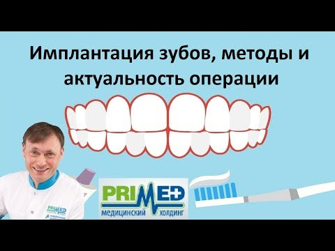 Имплантация зубов: передних и задних, цены под ключ