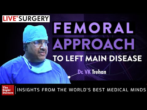 Live From Jaideva Bangalore- Femoral Approach To Left Main Disease By Dr. VK Trehan