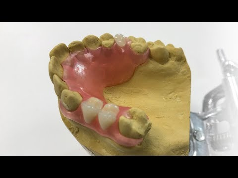 How To Make A Fiber Flex™ Partial - The Entire Process | Dental Lab Learning