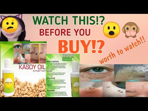 KASOY OIL REVIEW!? TRY AND TESTED || SAFE BA SYA GAMITIN? || emzz Delfin