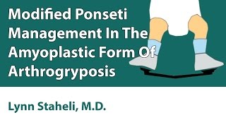 HELP : Modified Ponseti Management In The Amyoplastic Form Of Arthrogryposis