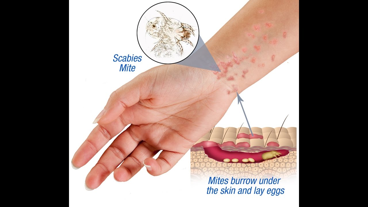 scabies causes symptoms and treatment youtube