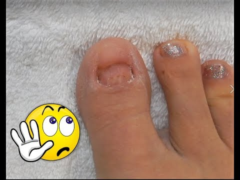 No Toenails Make Some Acrylic Glitter Toesnails Using Dual Forms Youtube