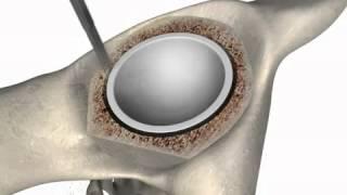 OSCAR Bone Cutter schematisch