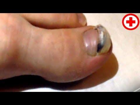 Что делать если слезает ноготь