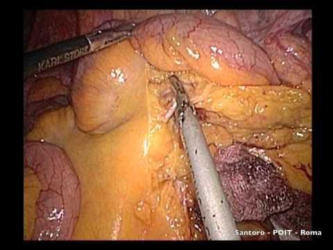 tumore-del-colon-destro.-emicolectomia-destra-laparoscopica-(dr.emanuele-santoro)
