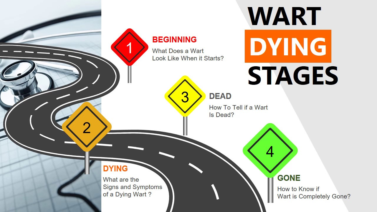 Wart Dying Stages Till Dead And Gone Signs And Symptoms Youtube