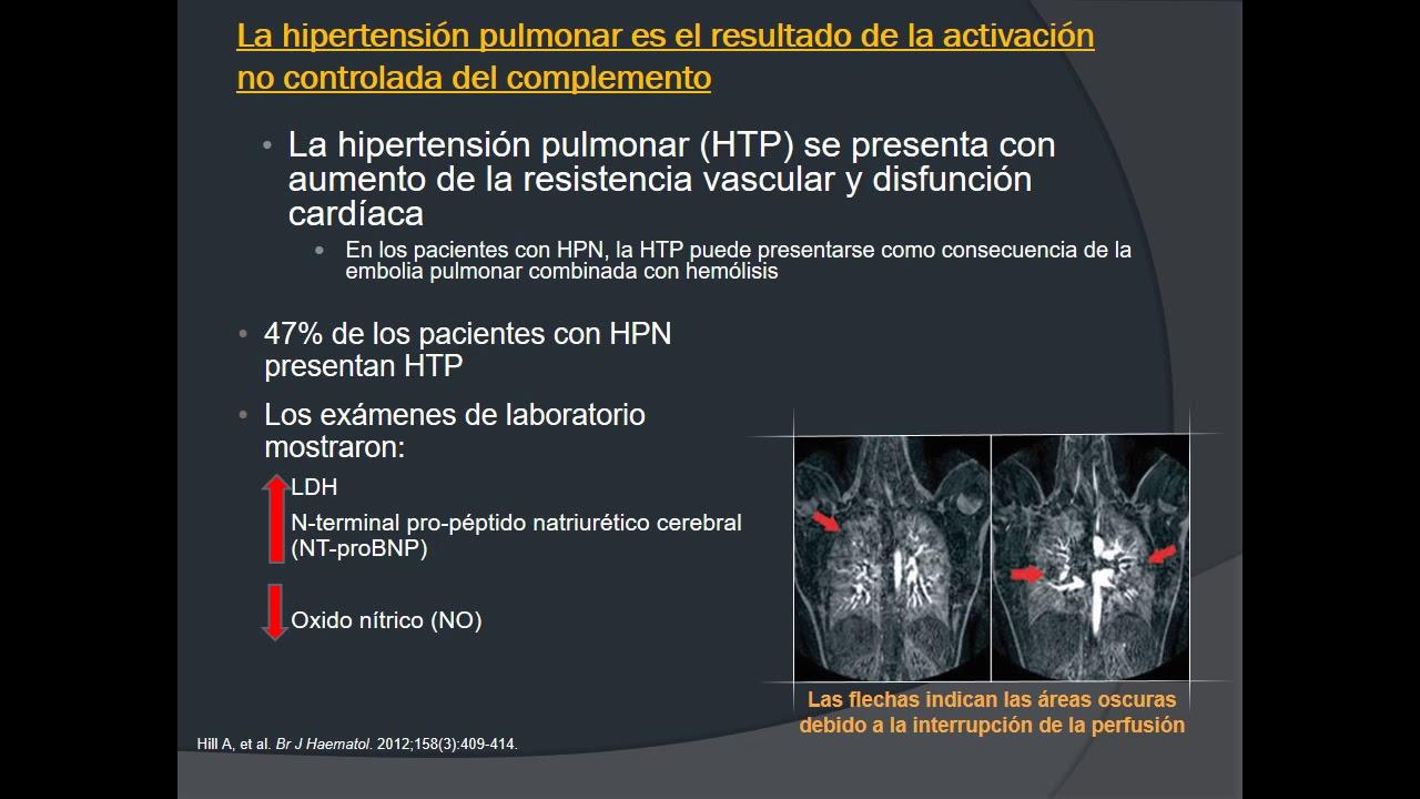 Clasificación de hipertensión pulmonar 2020 esquivar