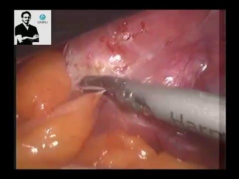 Laparoscopy For Severe Pelvic Adhesions Of Endometriosis Dr Wael Elbanna